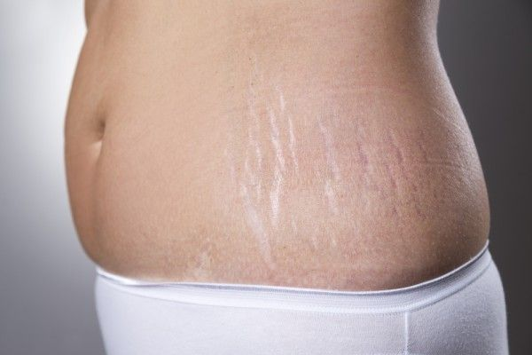 How To Remove Stretch Marks After Delivery, Home Remedies - Glowpink-All information on How To Remove Stretch Marks After Delivery, Home Remedies, Myths and Facts about stretch marks, Frequently asked question