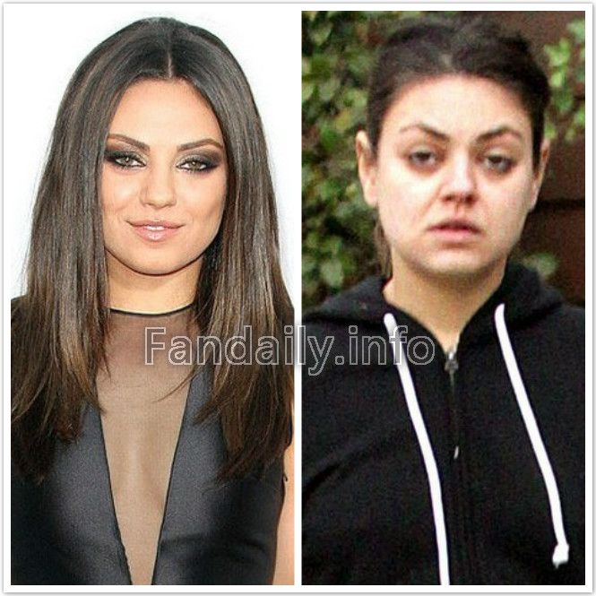 Celebrity Eyebrow Before And After- Celebrity Eyebrow ...