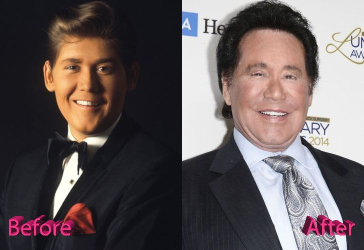 wayne-newton-before-and-after-cosmetic-surgery