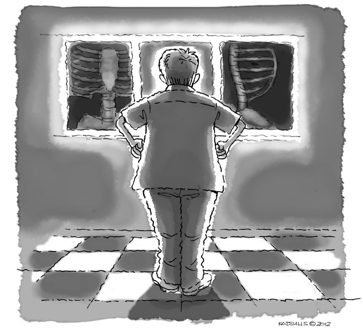 """On the Job #2"" illustration by Thomas C. Katsulis from HEARTBEATS: The Light-hearted Memoirs of Pioneer Heart Surgeon Constantine J. ""Dino"" Tatooles, M.D. (forthcoming September).  Learn more about HEARTBEATS by James E. Tatooles and pre-order your copy now at http://www.open-bks.com/library/moderns/heartbeats/about-book.html"