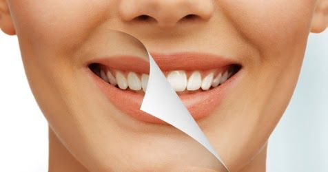 Greensborough Dentist shares effective ways of preventing a chipped tooth