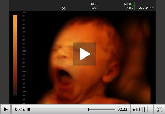Qué pasa cuando el test de embarazo te da NEGATIVO, pero tú sientes que estas EMBARAZADA