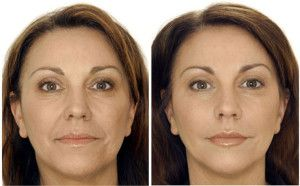Botox® is one of the most commonly used treatments for wrinkles. It can effectively reduce the signs of aging, but many people are concerned about its safety. Botox® is made from purified and sterile botulinum toxin and is safe to use in small doses. If someone's skin becomes too firm and it is hard to move the face or make expressions, it is likely that too much Botox® was used. Some people should not be treated with Botox®. It is not recommended for use in anyone who is sensitive or…