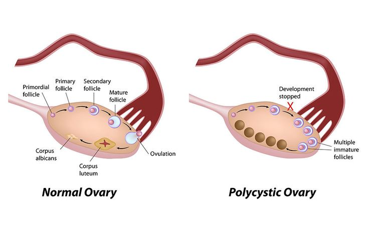 7 Things You Need To Know About Polycystic Ovary Syndrome  http://www.prevention.com/health/7-things-you-need-to-know-about-polycystic-ovary-syndrome?cid=soc_Women%2527s%2520Health%2520-%2520womenshealthmagazine_FBPAGE_Women%2527s%2520Health__