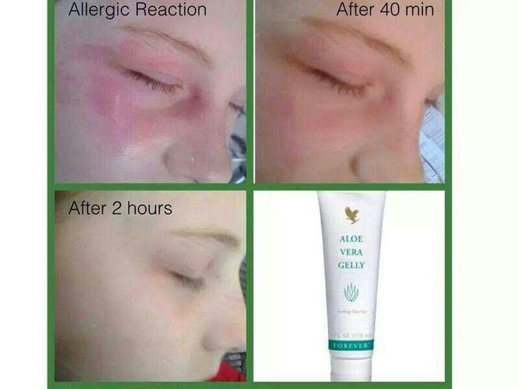 Got irritation or swelling on skin, try aloe vera gelly
