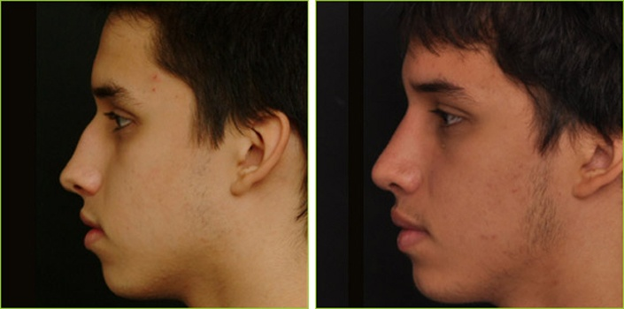 This is a 16 year old male patient who did not like the bump on the upper part of the nose which accentuated the depression along the lower third of the nose. He also wanted the bridge of his nose to be slightly thinner. He also had internal breathing problems with a septal deviation and enlarged, allergic turbinates. After surgery, his profile is more straight as I took down the hump and added a small piece of cartilage where the depression was.  Eos Rejuvenation  Nima L. Shemirani, MD
