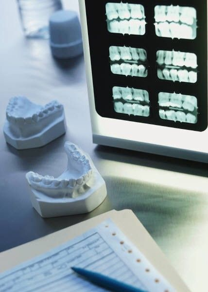 Berlin Dentist: The Right Treatment for Broken or Chipped Tooth is Here!