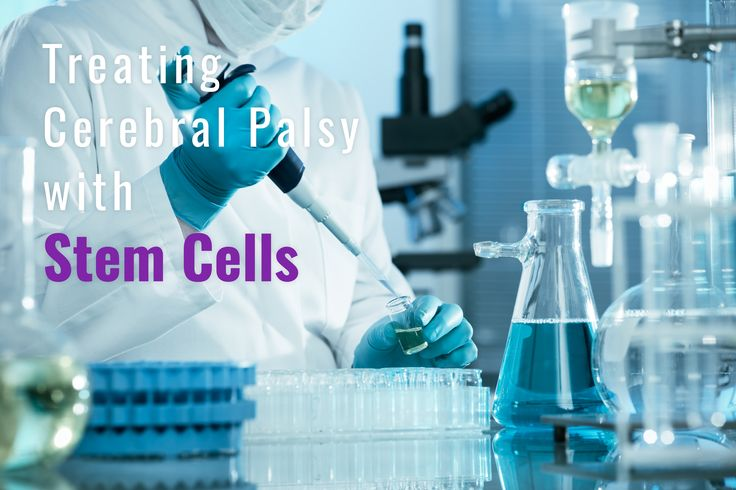Over 200 clinical investigations are underway worldwide into stem cells gathered from cord blood and cord tissue.  Stem cell research holds promising future with rapid advances in  each year. #Cordbloodbamking #StemcellTherapy https://texasstemcell.com/treating-cerbral-palsy-stem-cells-irans-biggest-national-project/