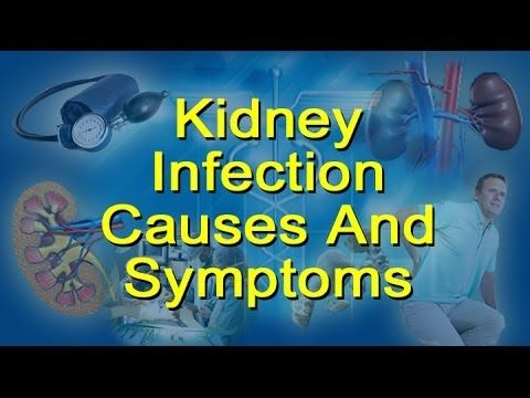 Kidney Infection Causes, Symptoms  - Glomerulonephritis and Pyelonephritis -  CLICK HERE for the Blood Pressure treatment method #blood #pressure #bloodpressure Transcript: Kidney Infection Causes, Symptoms – Glomerulonephritis and Pyelonephritis Kidney infection dangers are real and serious because an untreated kidney infection can lead to kidney failure. Once... - #BloodPressure