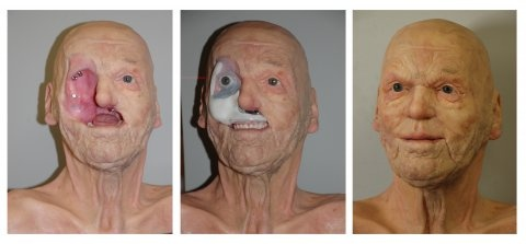 Baby..i facial tumor removal are