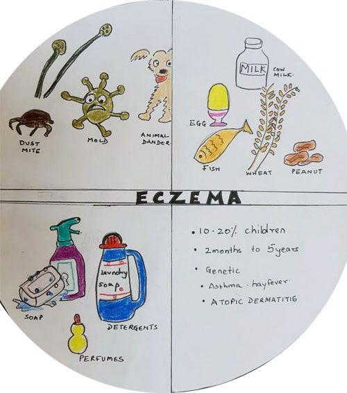 Eczema In Children   https://www.singhaniaclinic.com/pediatrician/eczema-in-children/ Why Does My Child Have Skin Rash Despite Our Good Hygiene?