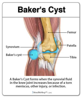 Baker's Cyst - A ganglion cyst or synovial cyst can occur in any joint in the body. They appear under the skin as a lump or bump and may sometimes present no other symptoms. The cyst is basically a soft sac filled with a thick, clear fluid. It's still unknown why cycts form so close to a joint or tendon | AidMyMeniscus.com