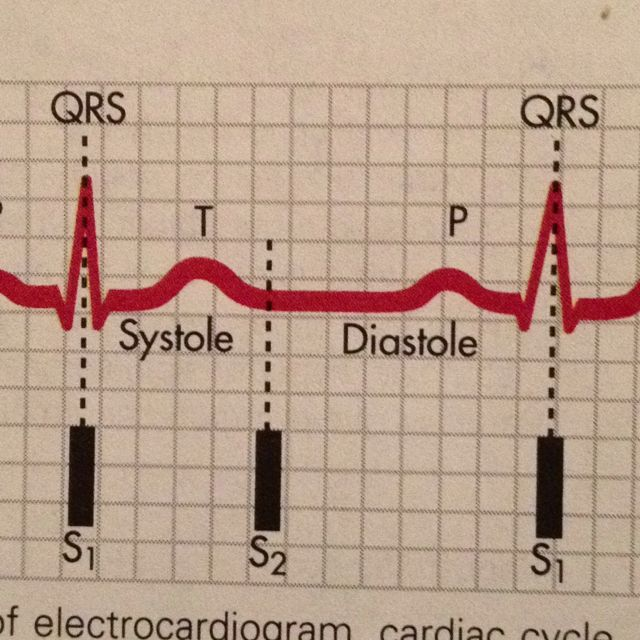 Electrocardiograph. Exercise Science Nerds <3