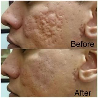 Watch these acne scars disappear almost instantly!