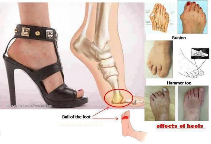 Effects-Of-Wearing-Heels1