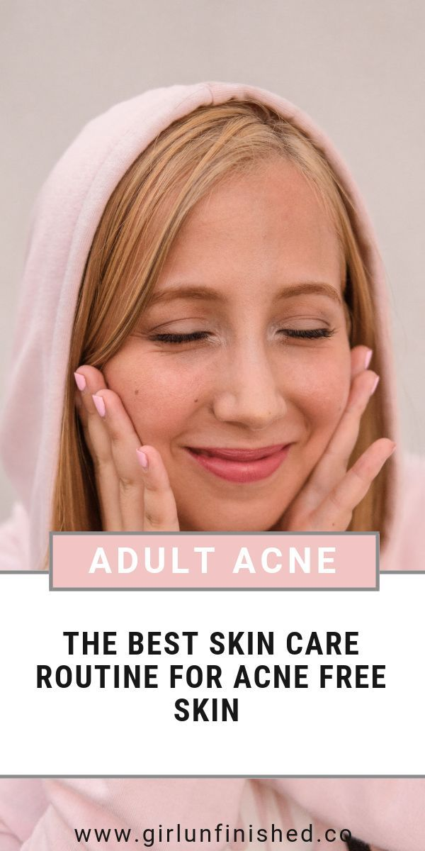 Pin On Adult Acne Treatment