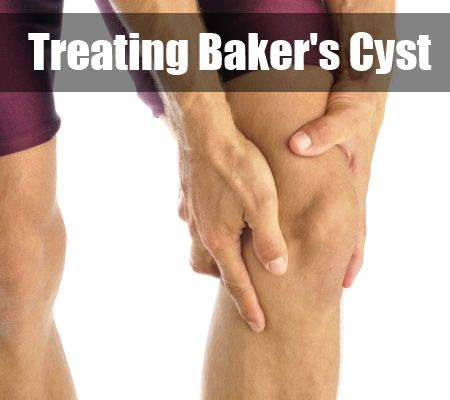 Natural Remedies For Baker S Cyst