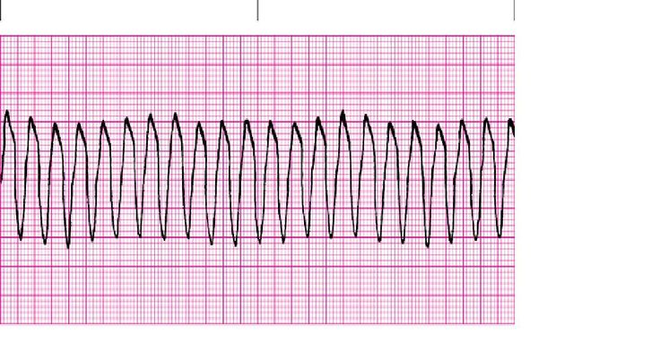 The Rhythms Of Your Heart: Ventricular Tachycardia (V-Tach)  This is how it looks when the lower chambers of your heart beat way too fast...It deprives the body of oxygen and can lead to life-threatening conditions...Learn more about it...