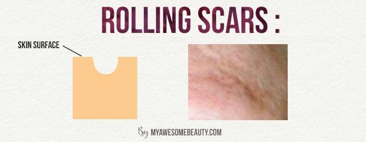 Pin On Acne Scars Treatment