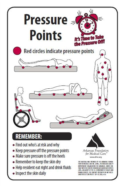 Pictures Of Pressure Ulcers