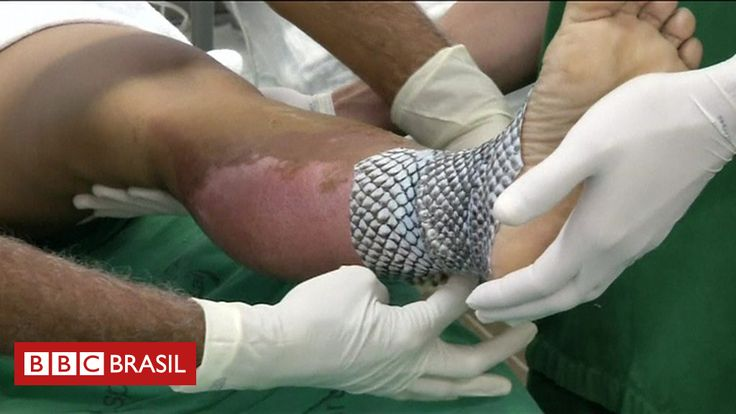 #O revolucionário método criado no Brasil para tratar queimaduras graves com pele de tilápia - BBC Brasil: O revolucionário método criado…