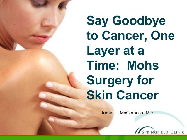 #Mohs Surgery for skin cancer Mohs Surgery for Effective Removal of Skin Cancer