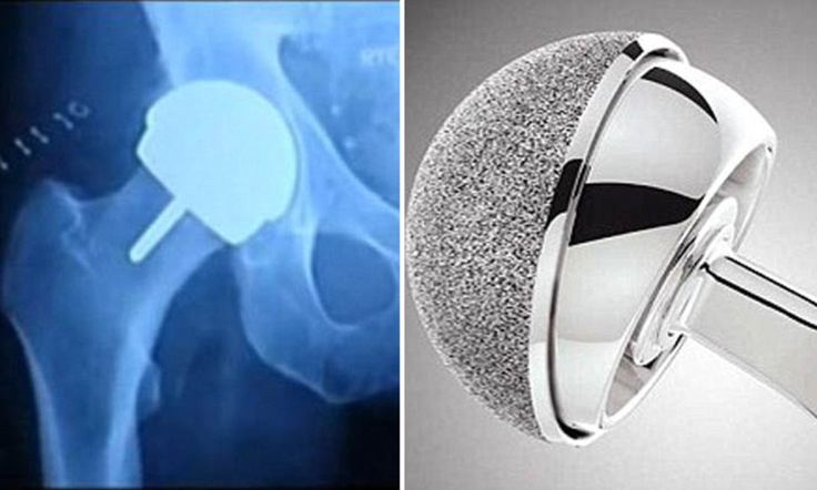 Poisonous hip implants 'putting thousands of British patients at risk' as medical watchdog launches investigation