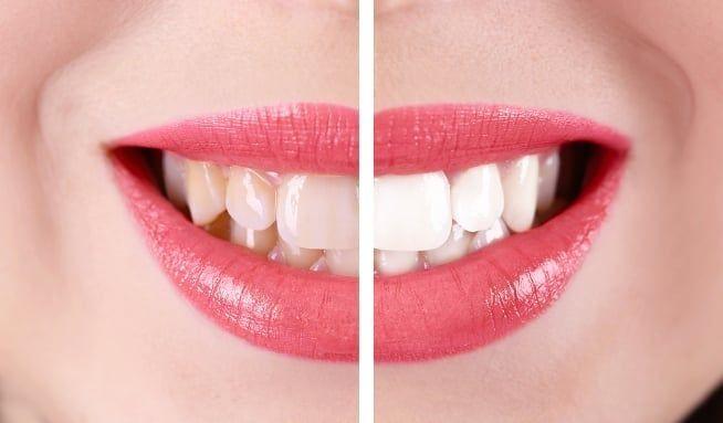 dTest: Bělicí, nebo klasickou zubní pastu? Je to skorojedno - Vitalia.cz