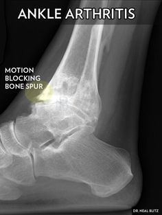 Bone Spur Removal for Ankle Arthritis: Ankle Arthritis: Motion blocking bone spurs form on the front of the ankle joint