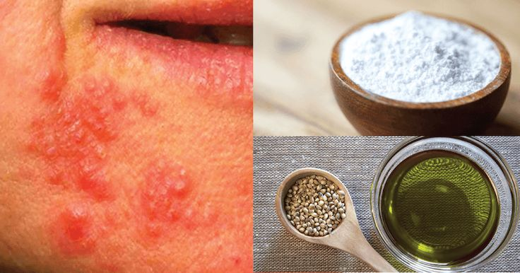 If you've ever experienced a rash around the mouth or eyes that simply won't go away, it could be perioral dermatitis. Perioral dermatitis is an inflammatory rash that accompanies small white pustules. It can be incredibly irritating and sore to touch – it can also make you feel very self-conscious and embarrassed in public. The …