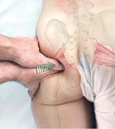 Eine der meist vergessensten Muskelgruppen die zu vielen Problemen führen kann wenn Verspannungen und Verkürzungen vorliegen . Beckenschiefstand und Rückenschmerzen sind nur 2 davon. Massagen zur Verbesserung und Vorbeugung sind wichtig um Schmerzen zu verhindern und andere Körperregionen zu beeinträchtigen.