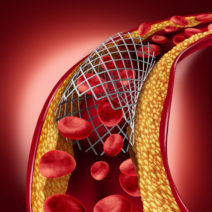 Coronary Stents Prices Slashed by 85%: Gov't Tells High Court The prices of life-saving coronary stents, used in angioplasty to ensure blood supply to and from the heart, have been slashed by 85 percent from their existing prices and capped, government said, March 2. – @Siliconeer #Siliconeer #India #Healthcare #SouthAsianHeart #Stents @NaMo #NaMo @Narendramodi #NarendraModi    The price of drug eluting stents http://siliconeer.com/current/coronary-stents-prices-slashed-b