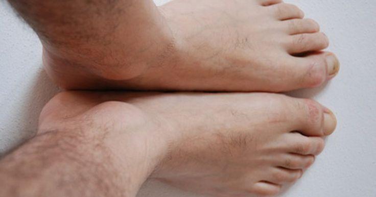 Tipos de órteses para problemas de tornozelo e pé. Uma órtese de tornozelo-pé (AFO), ou órtese para pé caído, é usada para controlar ou limitar movimentos da articulação do tornozelo em crianças e adultos com fraqueza muscular. Uma razão comum para o uso da órtese em adultos é melhorar a função do músculo fraco, causado por um derrame ou doença degenerativa. O aparelho pode ser usado para corrigir ...