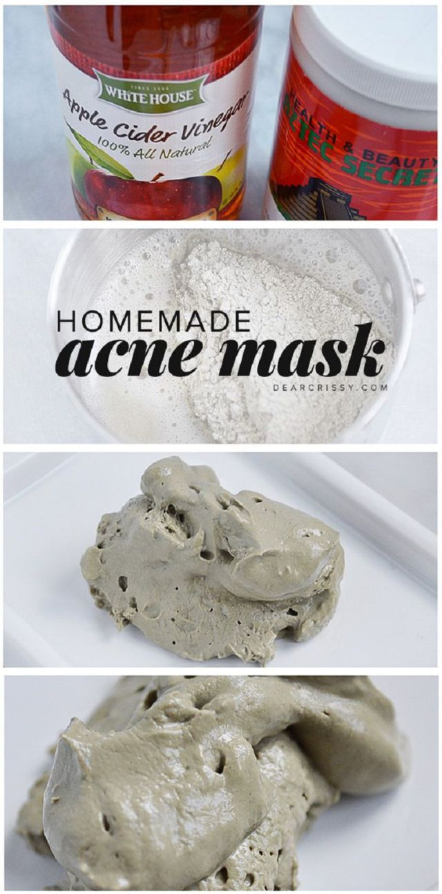 DIY Acne Mask Recipe - Unclogs pores and clears your skin! http://www.jexshop.com/