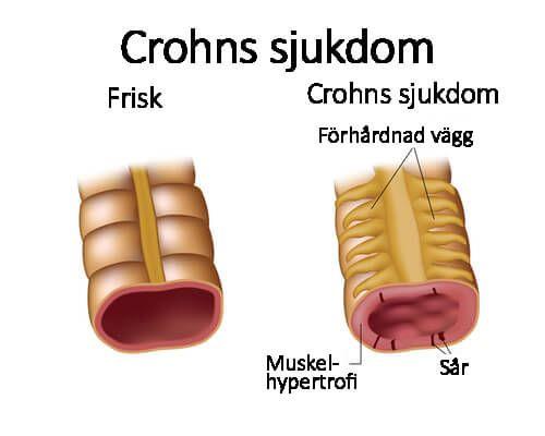 Crohns sjukdom är huvudsakligen baserad på en irritation eller svullnad i en del av mag-tarmkanalen. Sjukdomen kan påverka oss på flera olika sätt.