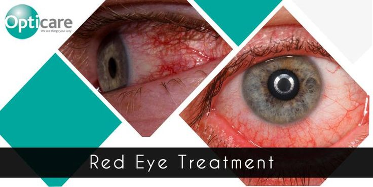 Red eye is a very common problem that may be quickly resolved. At Opticare, our optometrists will assess your eyes and may refer you of further treatment is necessary. http://www.opticareoptician.co.uk/eye-care/red-eye-treatment/
