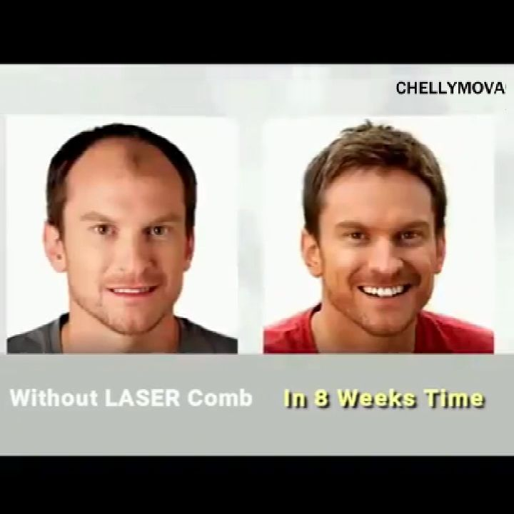 Health Hair Growth Laser Comb(BUY 1 GET 2ND 10% OFF) #Ideen