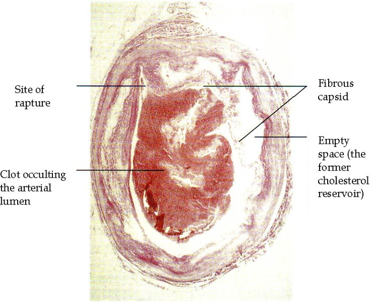 Fibrous Plaque -See how to lower cholesterol naturally at: http://vitamins.vitanetonline.com/