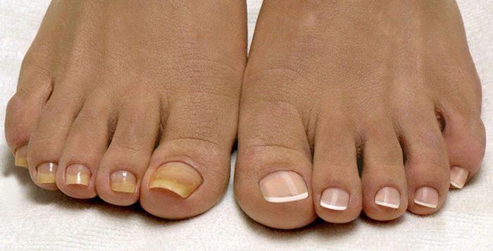 Během léta mě trápila mykóza na nohách. Prsty jsem si potřela tímto zázrakem a výsledky se dostavily již za pár dní! - ProSvět.cz