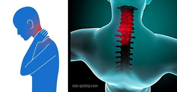 """Neck pain may feel like a """"kink,"""" stiffness, or severe pain. Pain may spread to the shoulders, upper back, or arms, or it may cause a headache. Neck movement may be limited, usually more to one side than the other. Neck pain refers to pain anywhere from the area at the base of the skull…"""