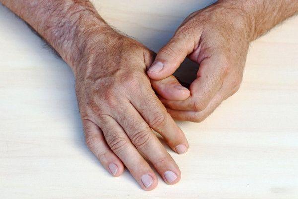 inflamația articulară în mână)