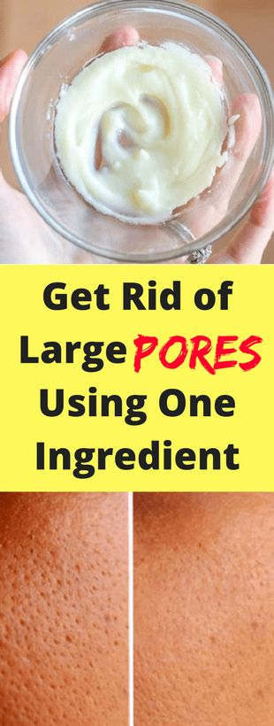Get Rid of Large Pores Using One Ingredient – he…