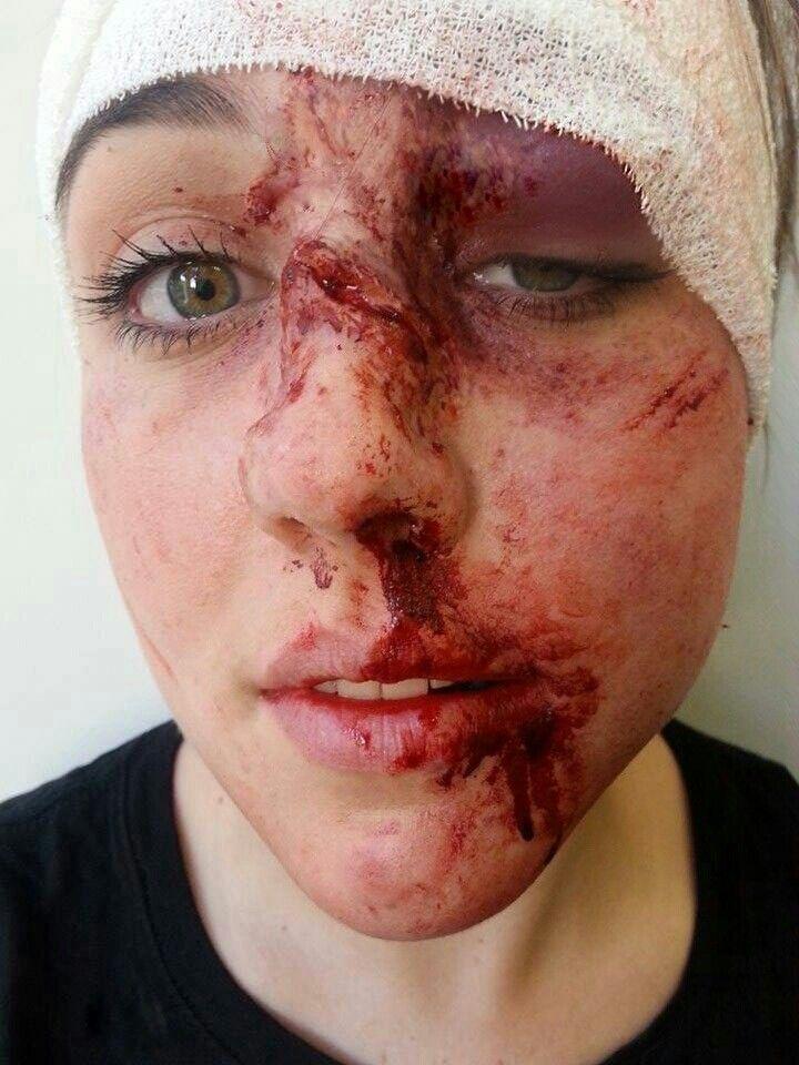 Spfx makeup, cuts, bruising. Blood,  silicone swollen eye socket, special effects makeup by jacquelinepriem