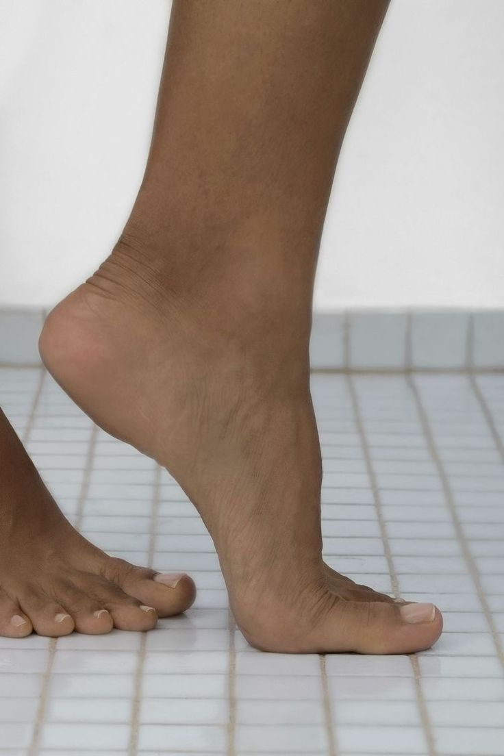 How to Prevent Blisters When Walking Bunion surgery