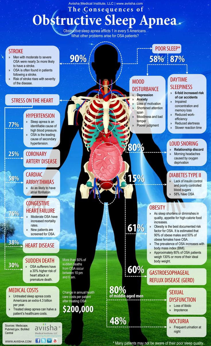 The Consequences of Obstructive Sleep Apnea Infographic #health #dentistry #sleep