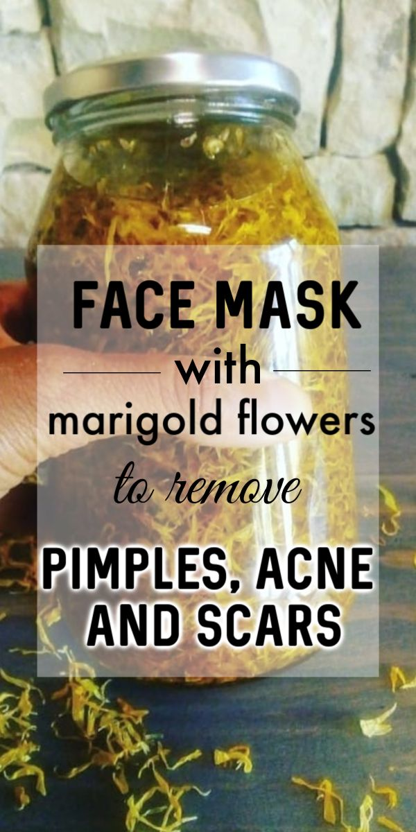 Miracle Mask to Remove Acne, Pimples & Scars From Your Face