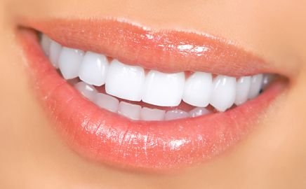 Bluffton Center for Dentistry | Porcelain Veneers