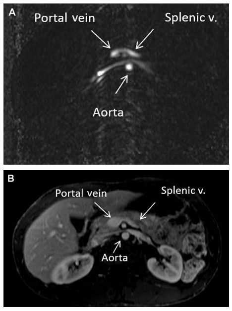 Figure 5 (A) Phase contrast (nongadolinium) magnetic resonance axial images of the abdomen below the level of the celiac artery.