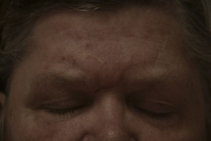 Image 6 - Final - Documentary series, untitled.  my mother's scars, the one in between her eyes