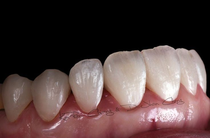 Pin By Amelia George On Full Dental Dentures Dental Art Dental Ceramics Dental Dentures